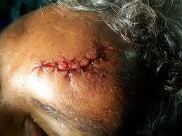 Homeopathy treatment for Head...