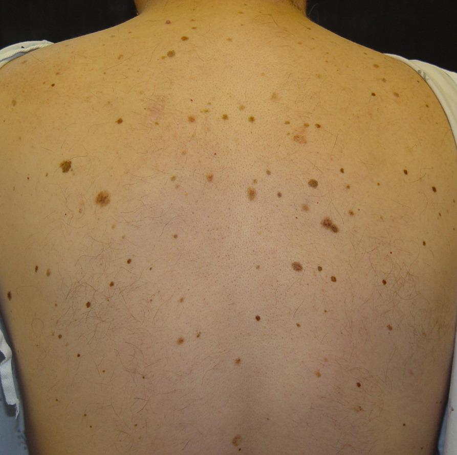 Moles on back - photo#1